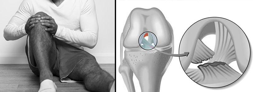 Bannière de présentation d'une rupture du ligament croisé antérieur.